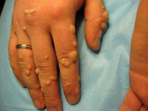 Инфекция папиллома человека симптомы